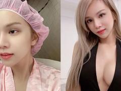 变性手术才取消!小A辣突宣布「动刀」公开绷带术后照 网:真的不懂